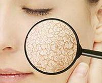 5 эффективных натуральных масок для сухой кожи